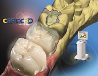 CEREC Dental Technology