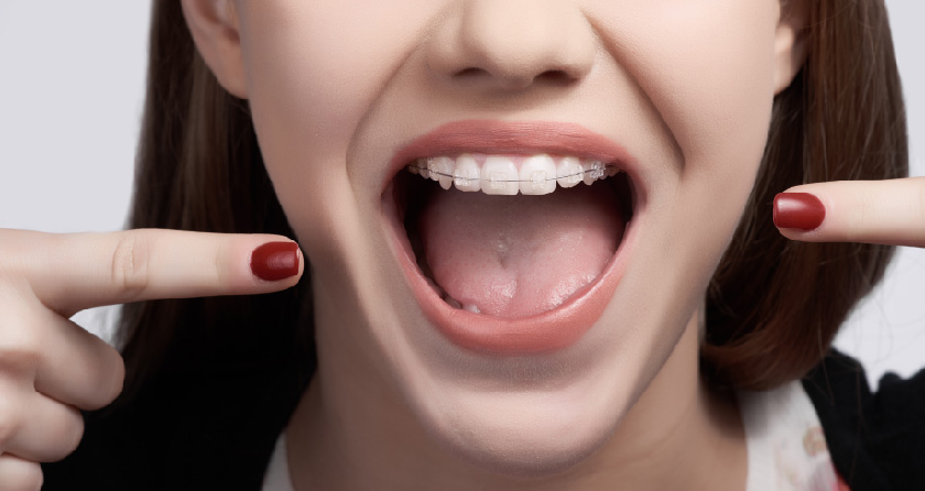 girl wearing braces pointing at teeth