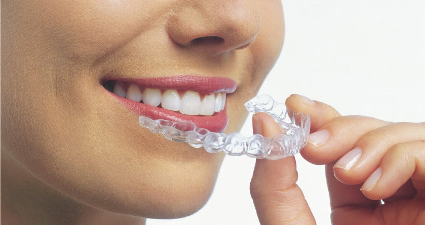 clear aligners for orthodontic treatments