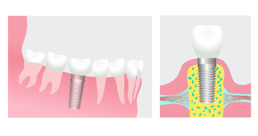 illustration showing how dental implants are placed